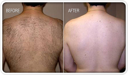 Laser Hair Removal for Men Santa Ana