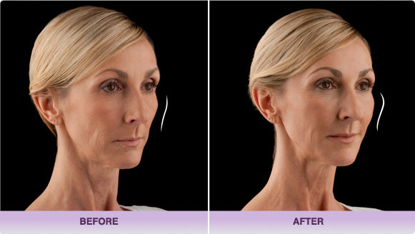 Voluma Cheek Augmentation Santa Ana & Irvine