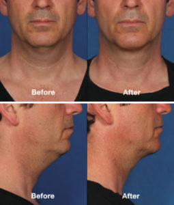 Kybella For Men Santa Ana & Irvine, CA