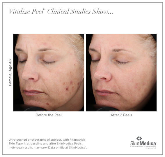 Chemical Peel Irvine