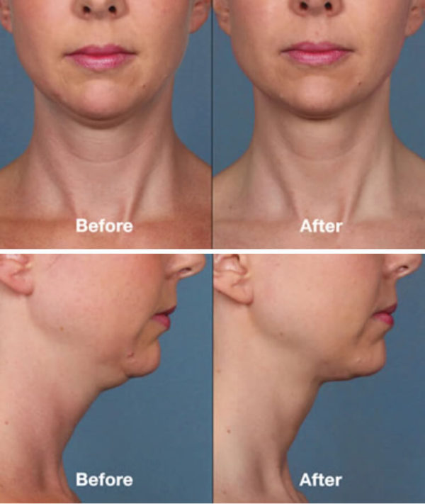 Double Chin Reduction Santa Ana