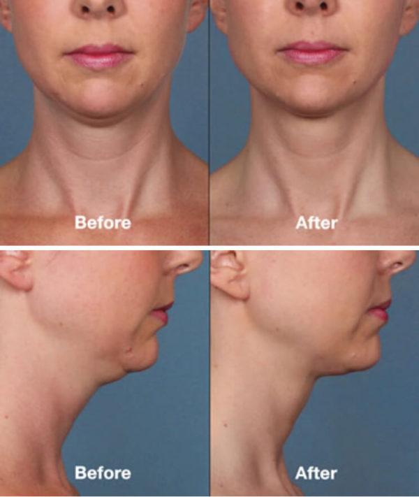Double Chin Reduction Santa Ana