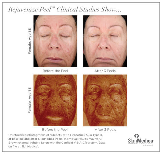 Skin Medica Peel Santa Ana