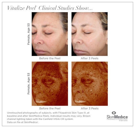 Chemical Peel Santa Ana