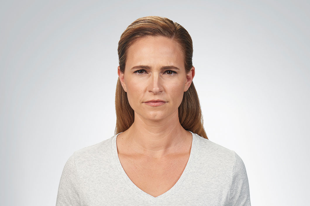 frown lines botox after photo