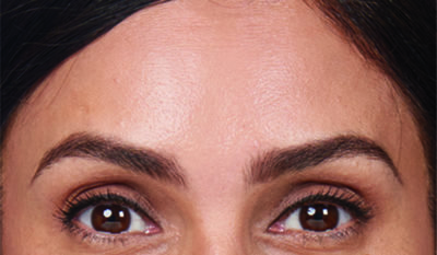 Moderate to severe forehead lines after botox treatment