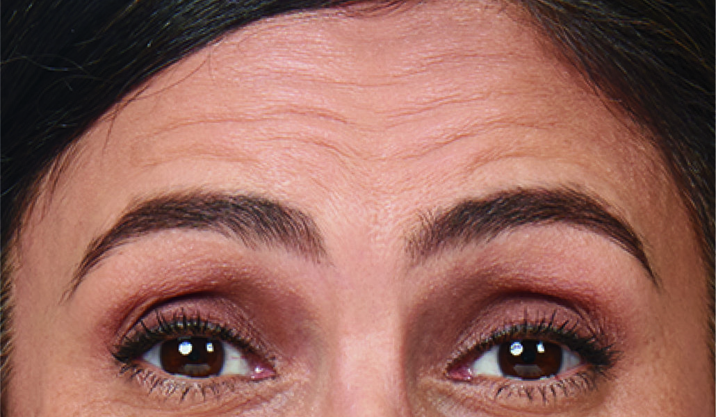 Moderate to severe forehead lines before botox treatment