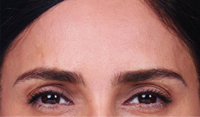 Moderate to severe frown lines after botox treatment