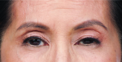 Moderate to severe frown lines botox after