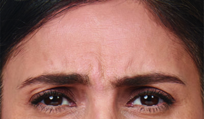 Moderate to severe frown lines before botox treatment
