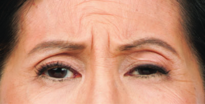 Moderate to severe frown lines botox before