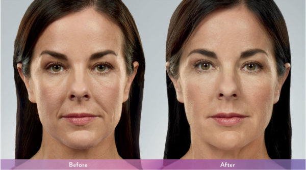 Eva - Juvederm - Before and After