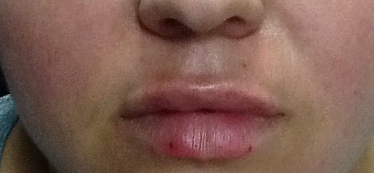 Juvederm Ultra after picture