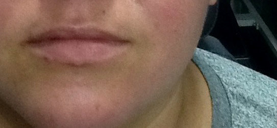 Juvederm Ultra before picture