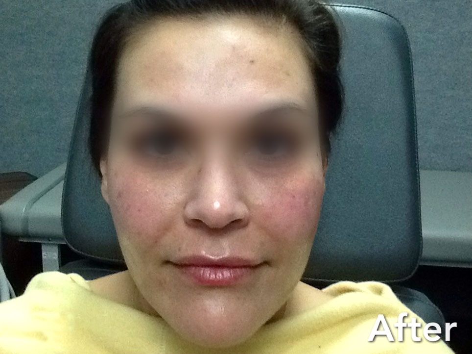 Juvederm Ultra, Juvederm Ultra Plus after picture