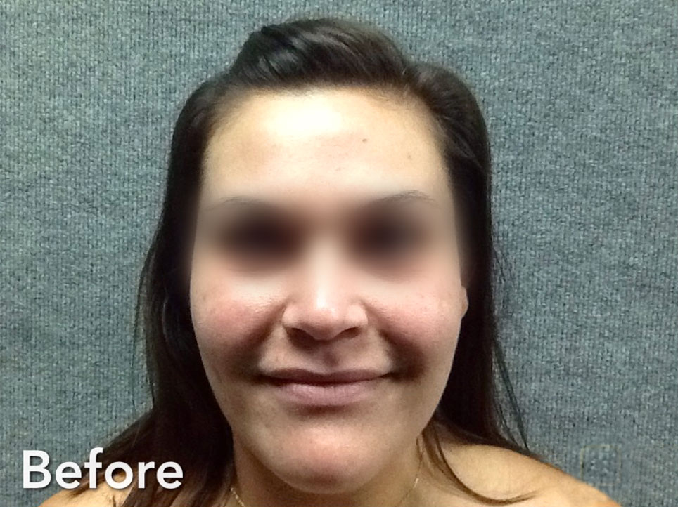 Juvederm Ultra, Juvederm Ultra Plus before picture