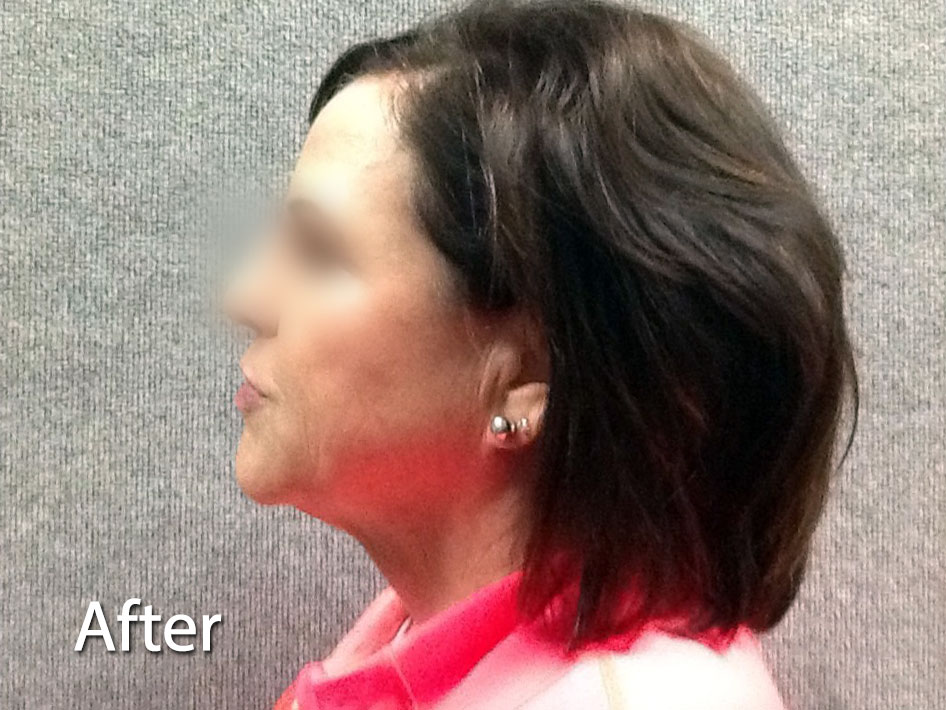 Kybella after picture
