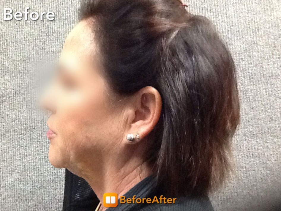 Kybella before picture