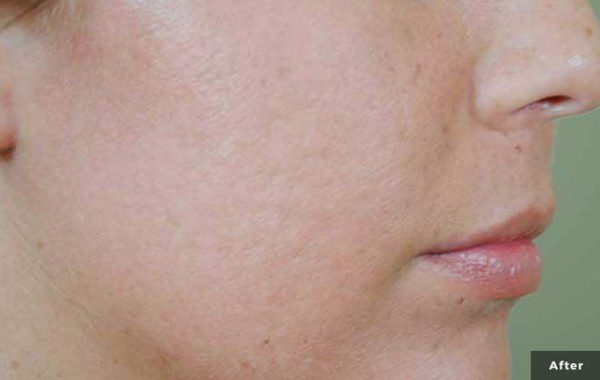Laser Acne Treatment Orange County
