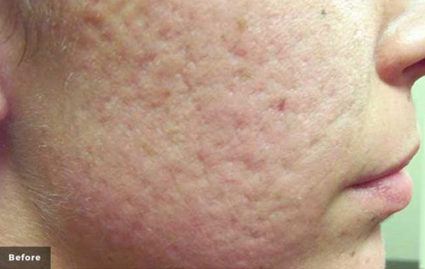 Laser acne treatment before