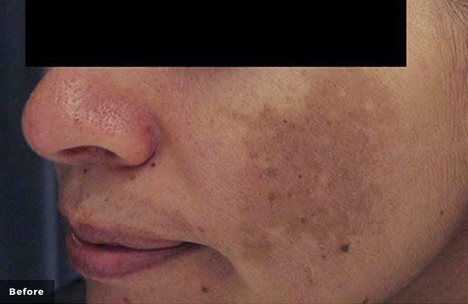 Laser genesis pigmented lesions after