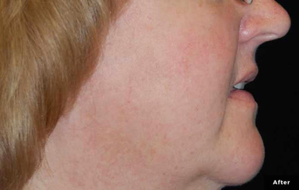 Laser genesis resurfacing after
