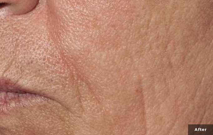 Laser Wrinkle treatment after