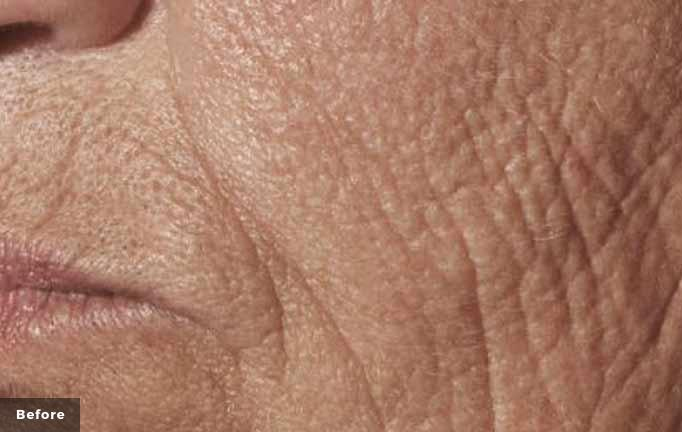 Laser Wrinkle treatment before
