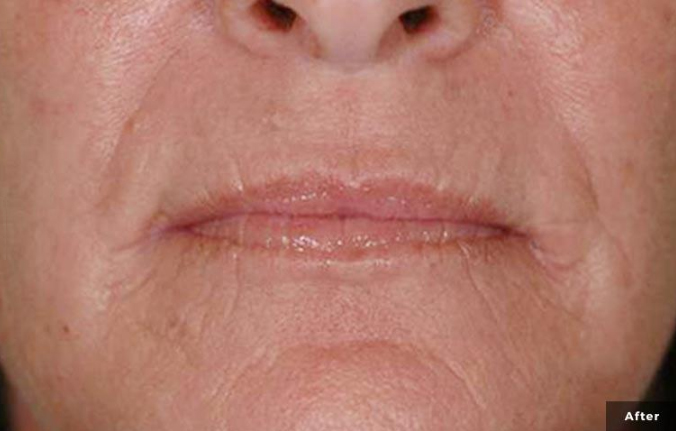 Laser Wrinkle treatment after