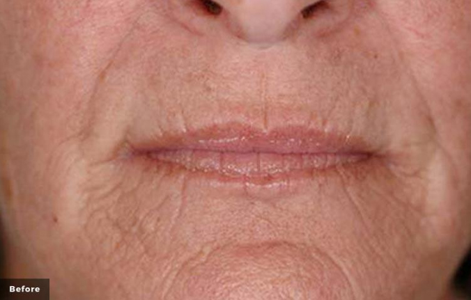 Laser Wrinkle treatment lips & chin before