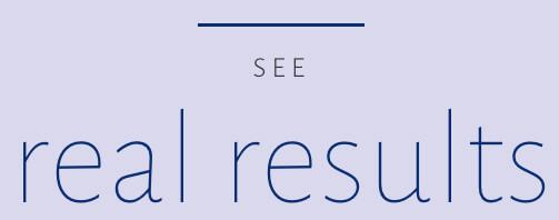 Restylane Refyne Results