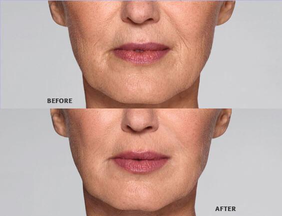 Restylane Refyne for lips - Newport Beach, Orange County, CA